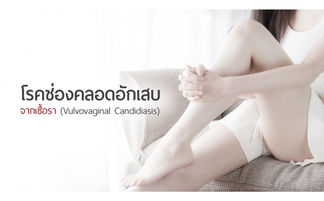 โรคช่องคลอดอักเสบจากเชื้อรา (Vulvovaginal Candidiasis)